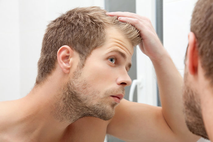 Top 5 baldness cure are popular for men