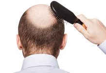 How to prevent hair loss for men?