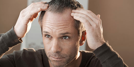 Prevent the path of DHT - Solutions to reverse early baldness