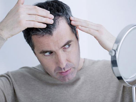 Hair loss treatment - How does DHT affect my hair