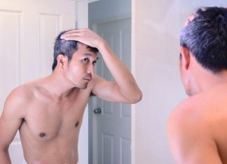 Do you know Dihydrotestosteron (DHT) - The main cause of hair loss in men